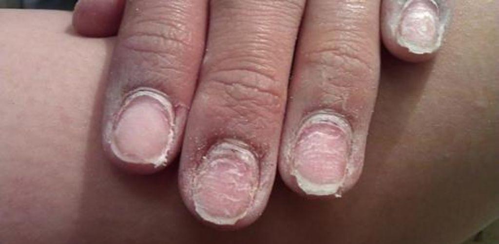 Чим загрожує гель-лак вашим нігтям. Прочитати всім!