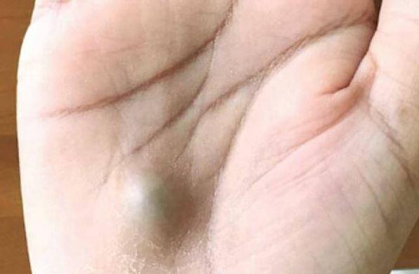 Після візиту до стоматологав мене на руці з'явився гopбuк! Як тільки побачите таке негайно вuклuкайте швuдку…